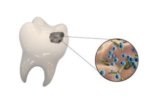 bacteria build up on teeth